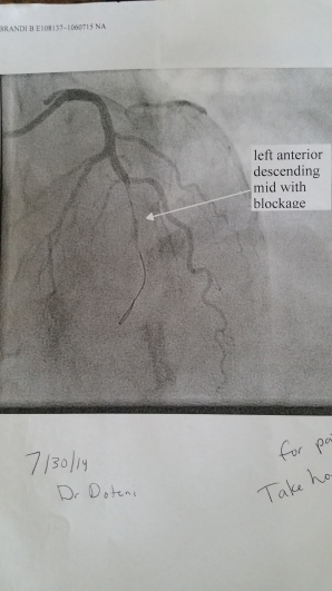 heart before stent